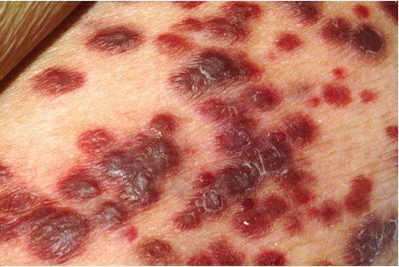 البكتيريا الأكلة للحم البشر والشذوذ الجنسي 1201603813clip_4.jpg