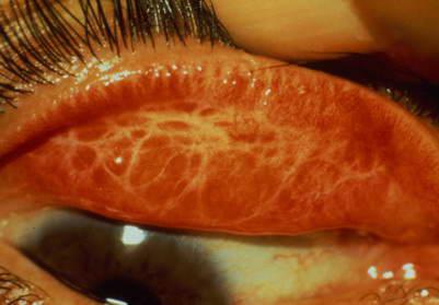 الإعجاز العلمي في حديث: الكمأة من المن وماؤها شفاء للعين 1248309560image5.jpg
